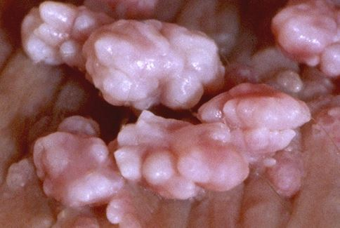 human papillomavirus hpv in chinese papilloma and wart