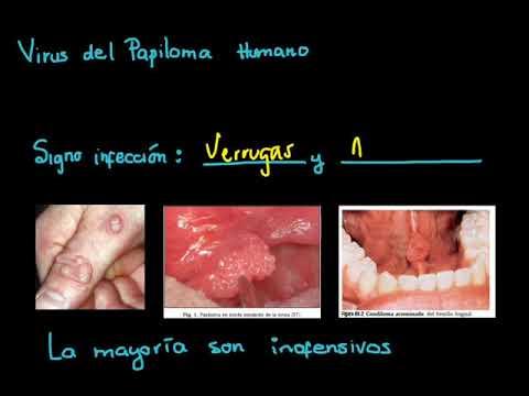 Papilloma bowenoide. CONDILOMA - Definiția și sinonimele condiloma în dicționarul Portugheză