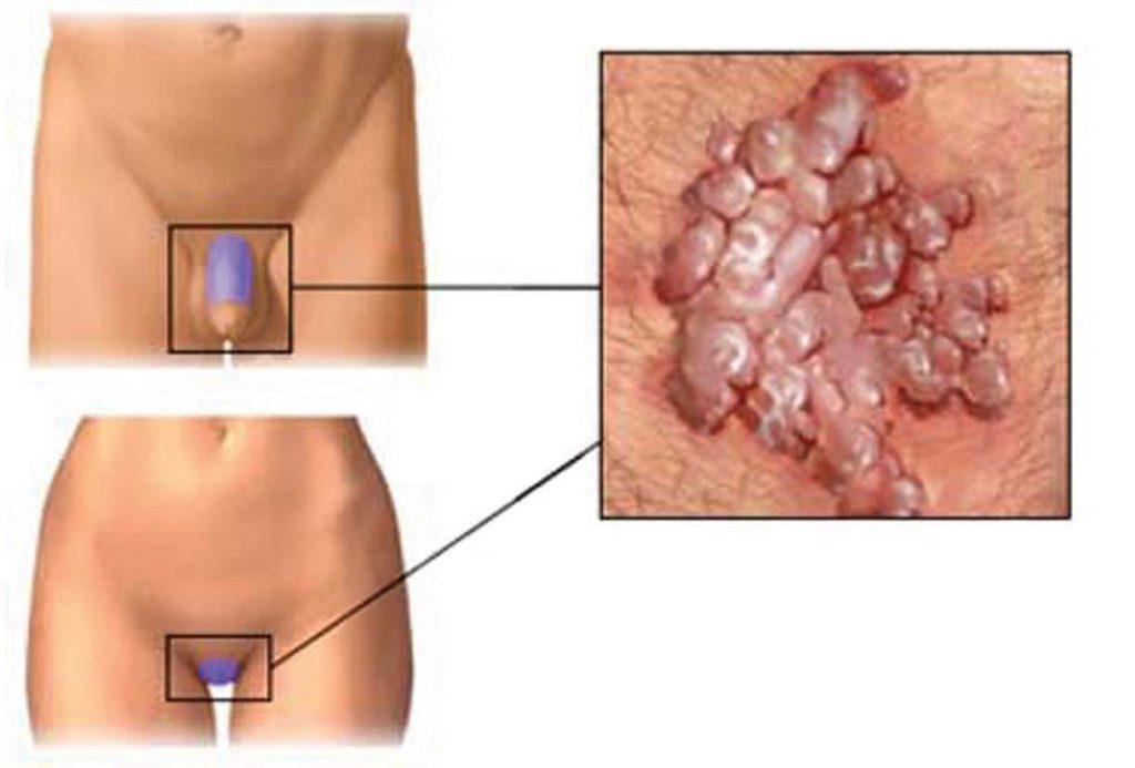 papilloma virus come si manifesta nell uomo parazitii rosenheim