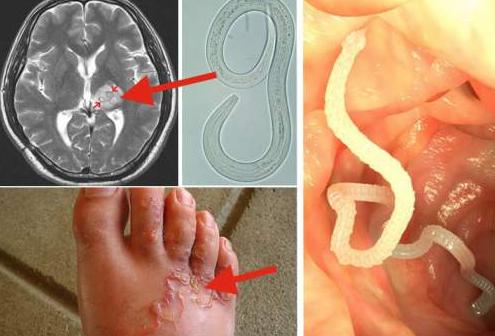 paraziți și corpul uman que significa papilomas