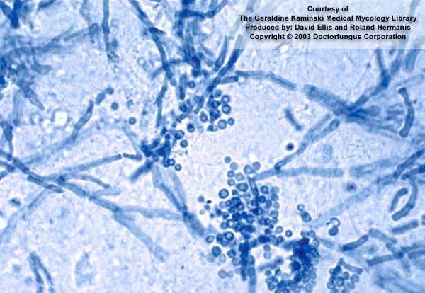 saprobe și paraziți papilloma virus su ugola
