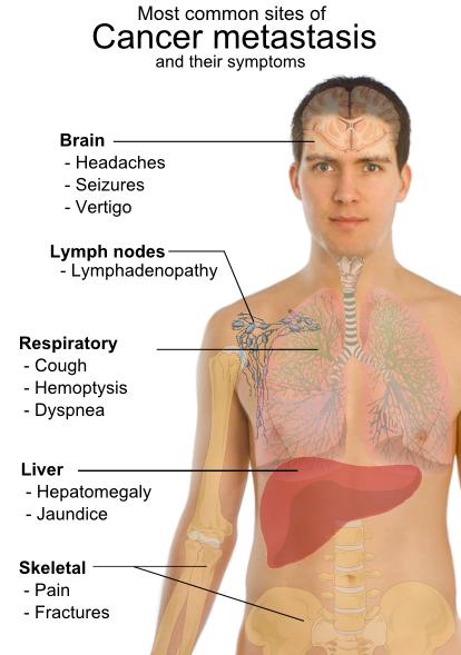 simptome cancer in ultima faza